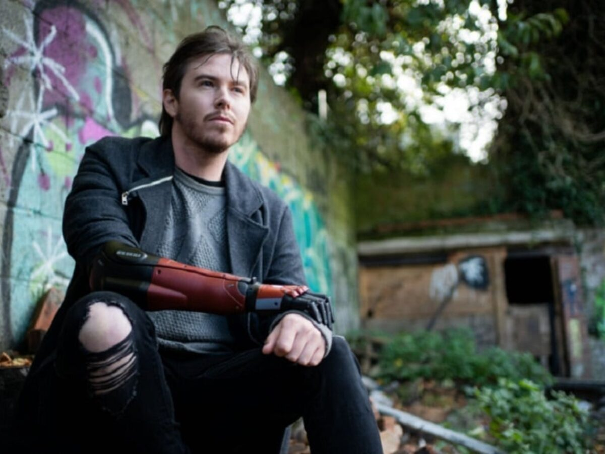 Daniel Melville The Man With The Metal Gear Bionic Arm